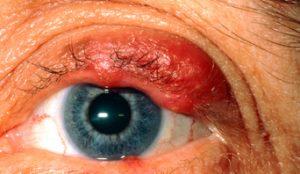 Eyelid Diseases | MyBioSource Learning Center