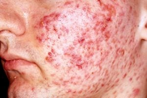 Image result for Acne Vulgaris