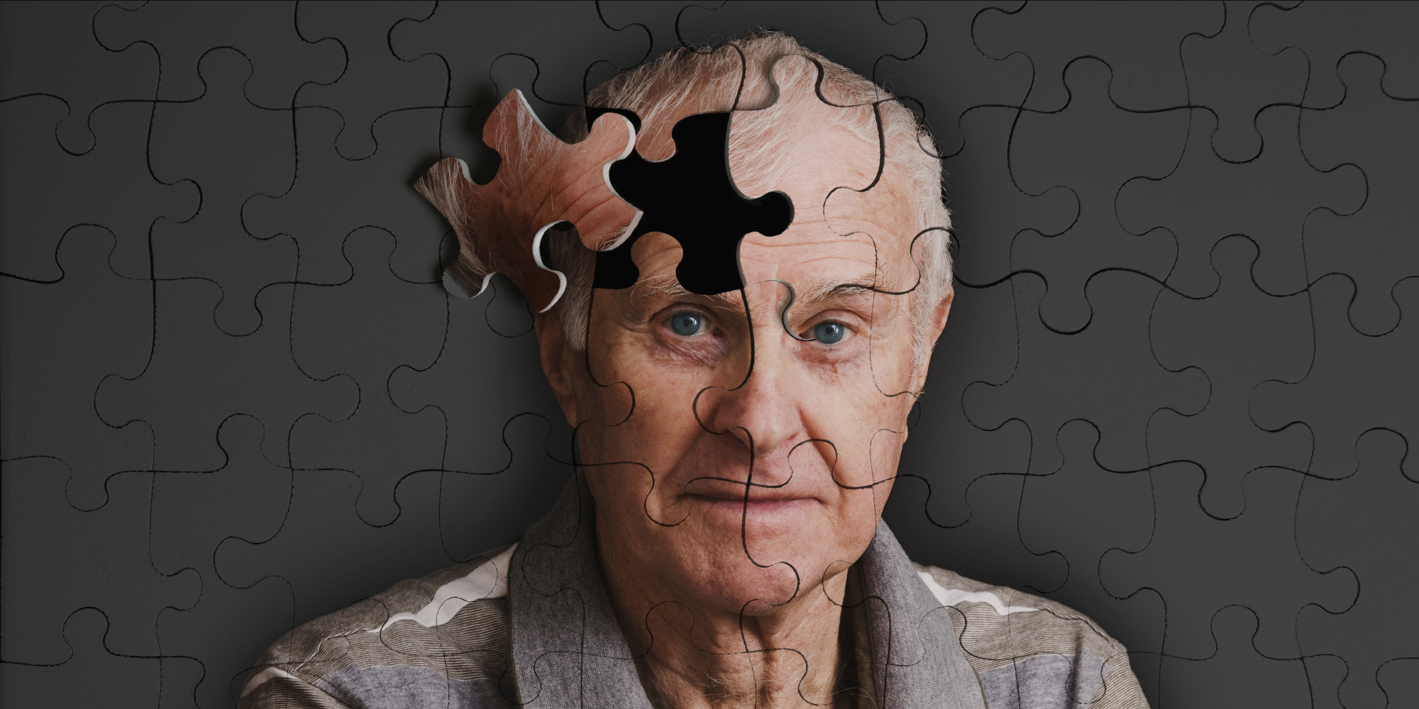 Alzheimer's And Other Neurodegenerative Disorders Seek Attention, Awareness And Cure.