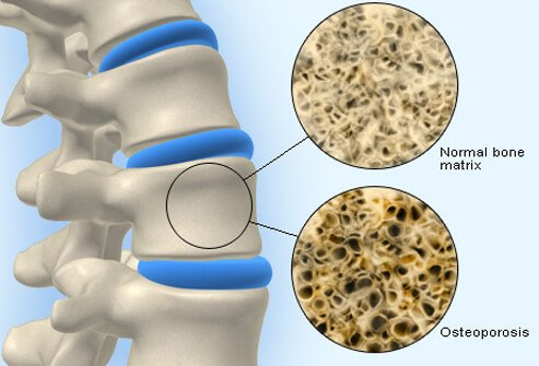 Osteoporosis more about healthy foods and exercises than pills and supplements